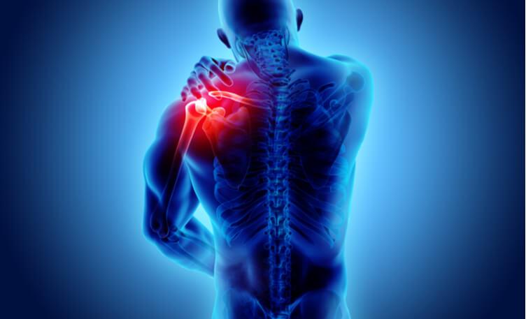 درد عضلانی چیست و راه های درمان آن چگونه است؟ | سینامگ