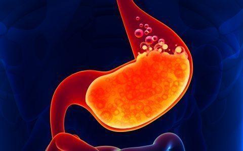 سو هاضمه چیست و راه های درمان آن چگونه است ؟ | سینامگ
